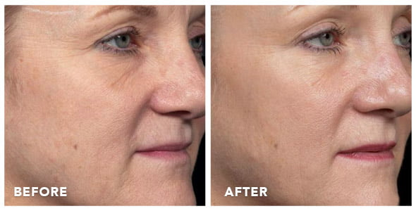 thermage-before-after-photos-03