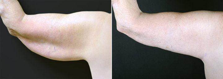 arm-lift-2314d-left-sobel