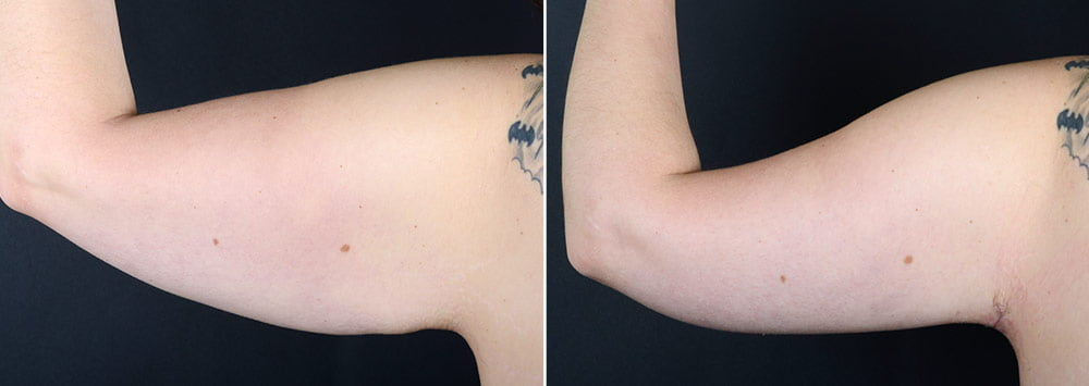 Upper Arm Lift | Anderson Sobel Cosmetic Surgery
