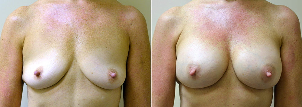 breast-augmentation-2329a-sobel