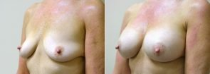 breast-augmentation-2329b-sobel