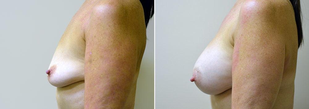 breast-augmentation-2329c-sobel