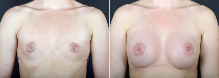 breast-augmentation-2351a-sobel