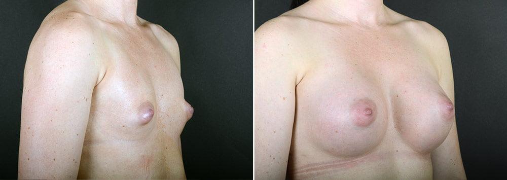 breast-augmentation-2351b-sobel