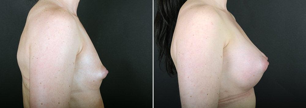 breast-augmentation-2351c-sobel