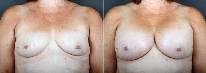 breast-augmentation-2362a-sobel