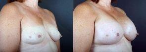 breast-augmentation-2362b-sobel