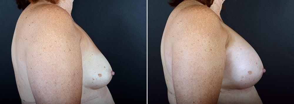breast-augmentation-2362c-sobel