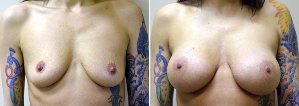 breast-augmentation-2511a-sobel