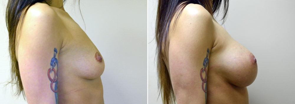 breast-augmentation-2511c-sobel