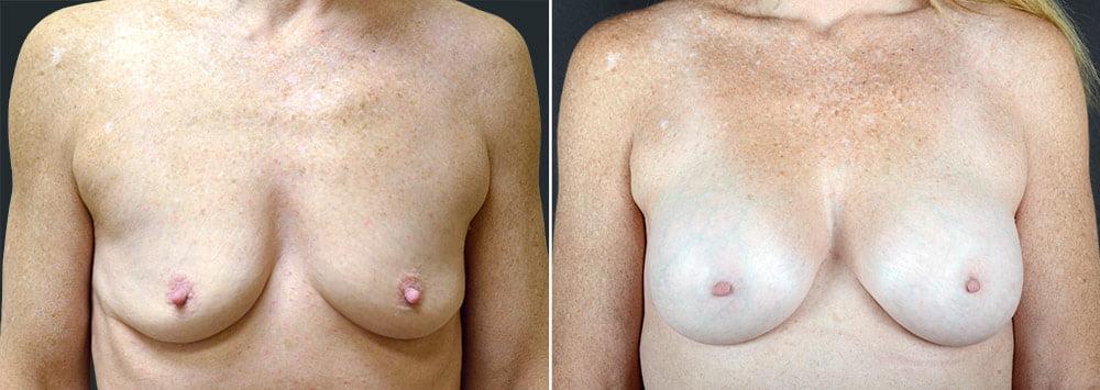breast-augmentation-2592a-sobel