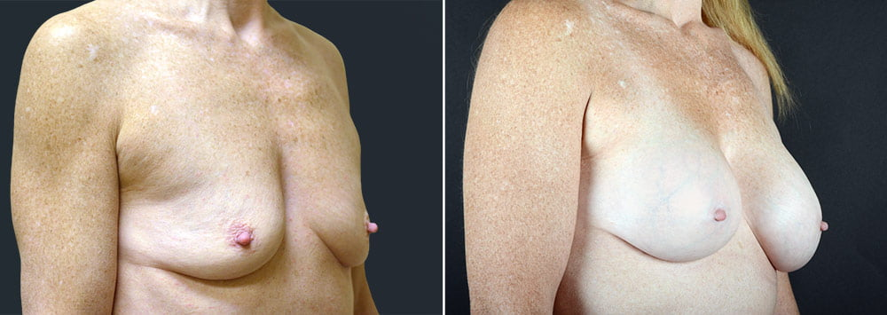breast-augmentation-2592b-sobel