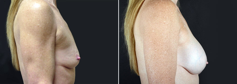 breast-augmentation-2592c-sobel