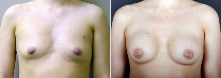 breast-augmentation-3421a-sobel