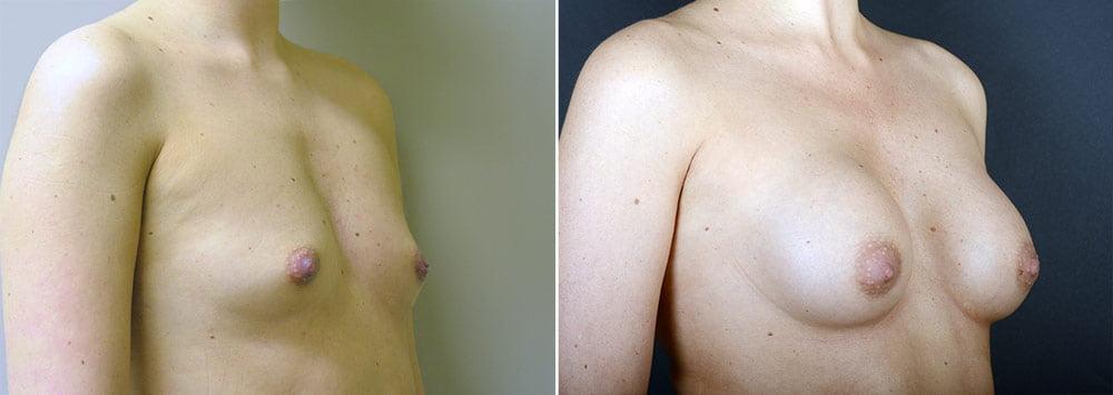 breast-augmentation-3421b-sobel