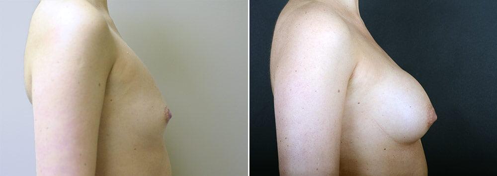 breast-augmentation-3421c-sobel