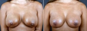 Breast Surgery Revision