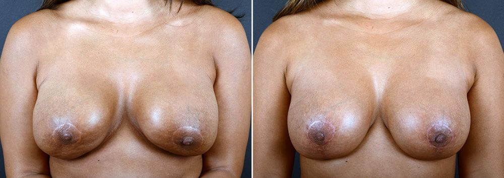 breast-augmentation-revision-2373a-sobel