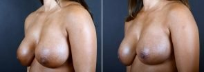breast-augmentation-revision-2373b-sobel