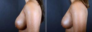 breast-augmentation-revision-2373c-sobel
