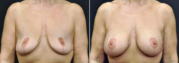 breast-augmentation-revision-with-lift-2587a-sobel