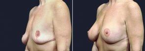 breast-augmentation-revision-with-lift-2587b-sobel