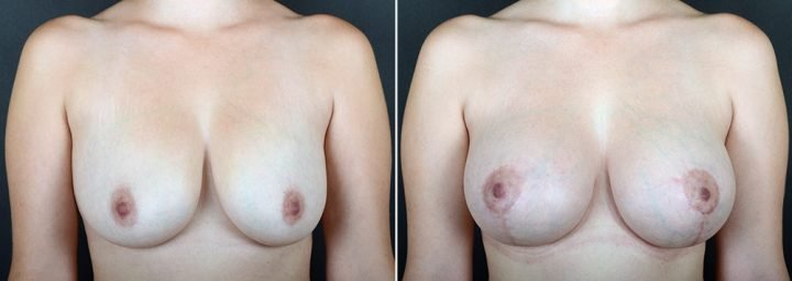 breast-lift-with-augmentation-2488a-sobel