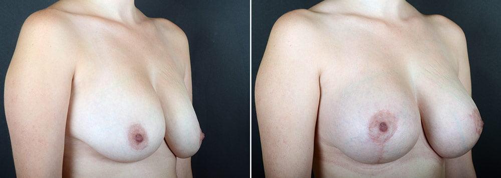 breast-lift-with-augmentation-2488b-sobel