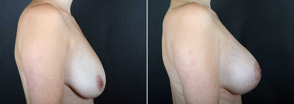 breast-lift-with-augmentation-2488c-sobel