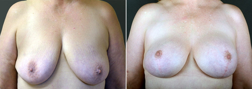 breast-lift-with-augmentation-2499a-sobel