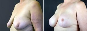 breast-lift-with-augmentation-2499b-sobel