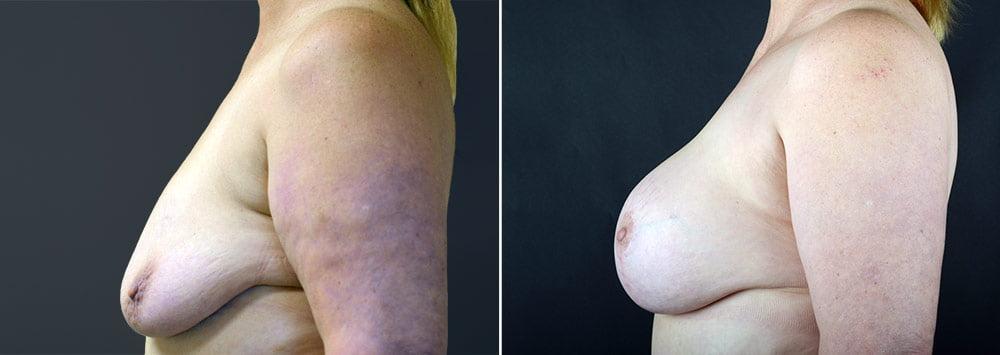 breast-lift-with-augmentation-2499c-sobel