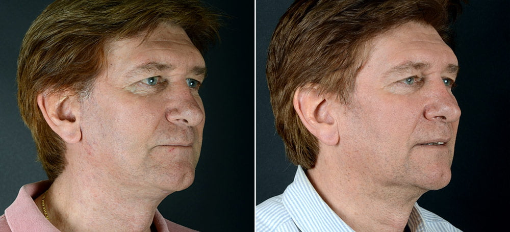 Before & after facelift surgery. Actual patient of Dr. Alex Sobel.*