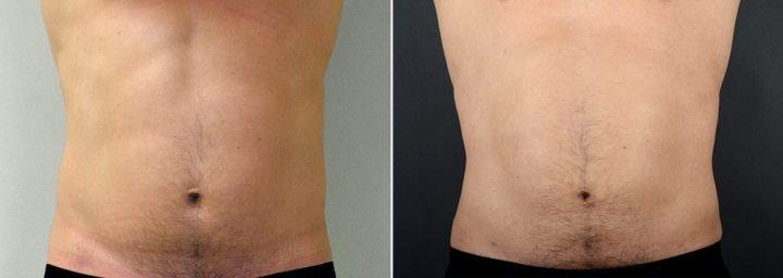 liposuction-male-2614a-sobel