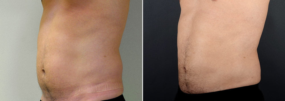 Before & after liposuction to the abdomen, waist and hips. Actual patient of Dr. Alex Sobel.*