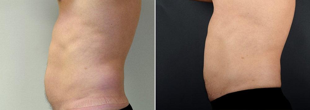 liposuction-male-2614c-sobel