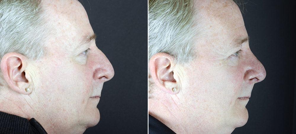 rhinoplasty-2465c-sobel
