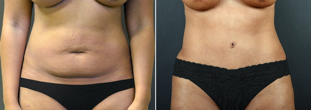 tummy-tuck-liposuction-2238a-sobel