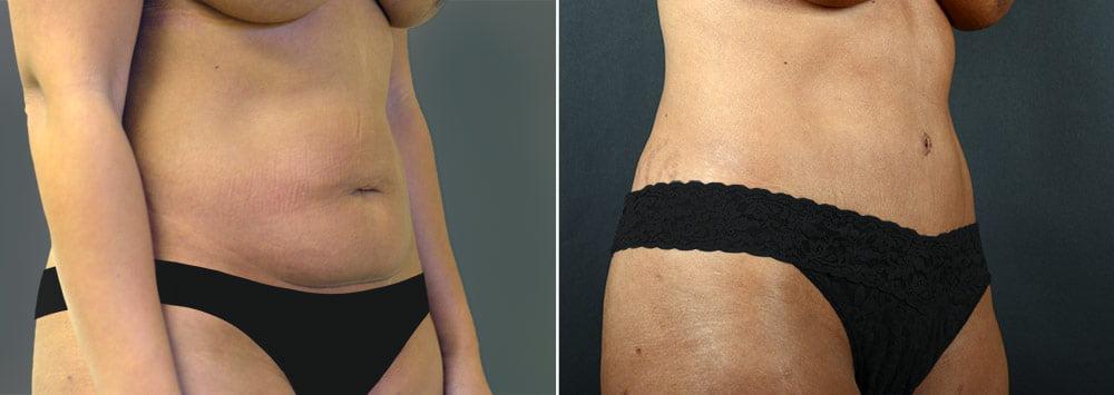 tummy-tuck-liposuction-2238b-sobel