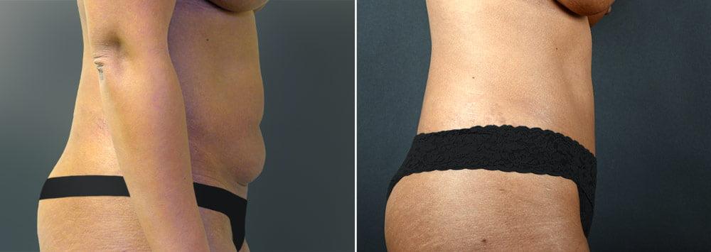 tummy-tuck-liposuction-2238c-sobel