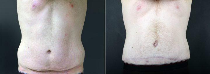 tummy-tuck-liposuction-2249a-male-sobel