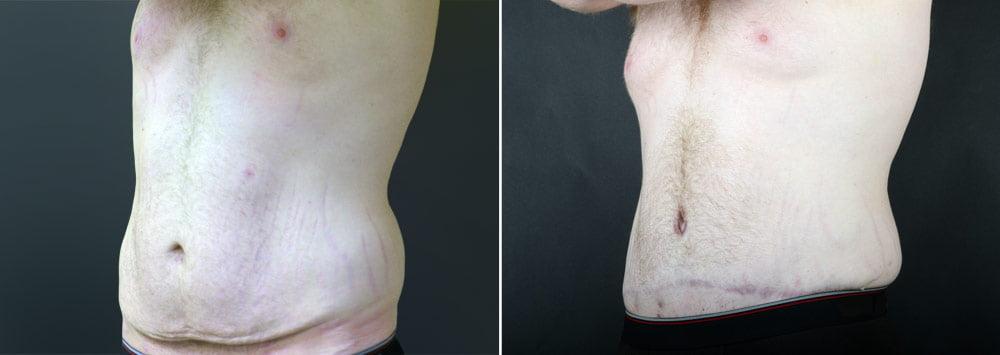 tummy-tuck-liposuction-2249b-male-sobel