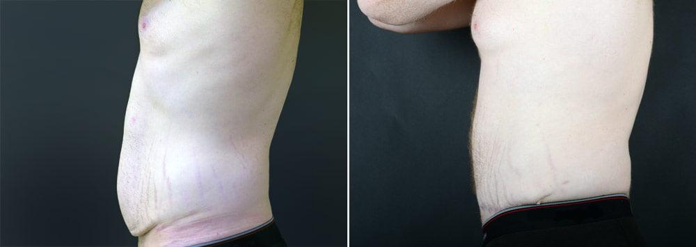 tummy-tuck-liposuction-2249c-male-sobel