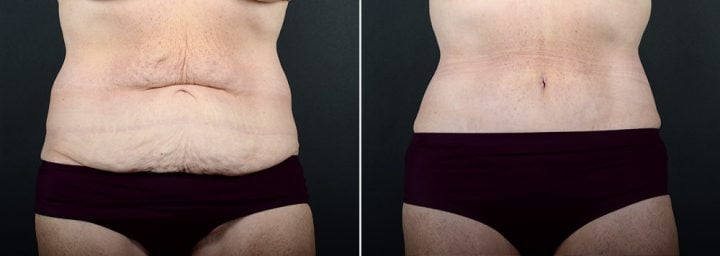 tummy-tuck-liposuction-2260a-sobel
