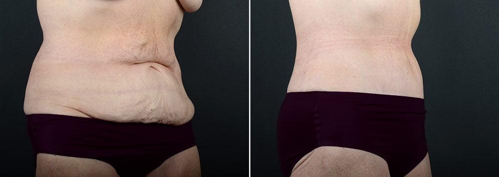 tummy-tuck-liposuction-2260b-sobel