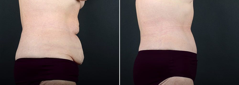 tummy-tuck-liposuction-2260c-sobel
