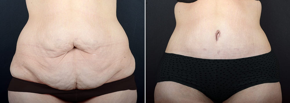 tummy-tuck-liposuction-2271a-sobel