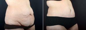 tummy-tuck-liposuction-2271b-sobel