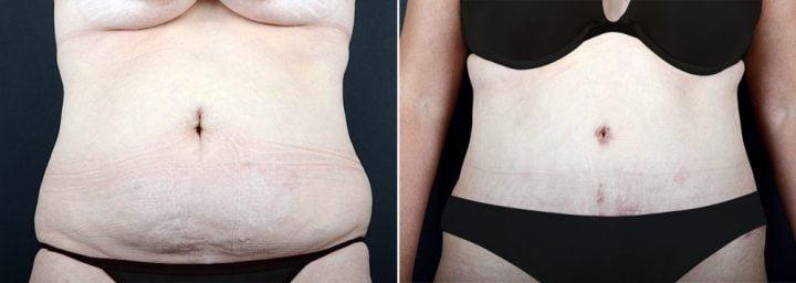 tummy-tuck-liposuction-2280a-sobel