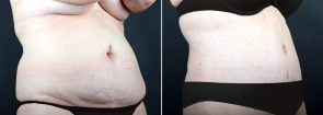 tummy-tuck-liposuction-2280b-sobel